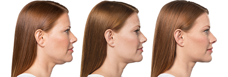 Kybella treatment over time, reduction in double chin size